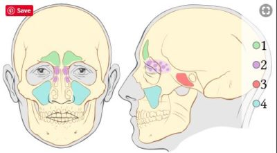 Illustration of Relapse Of Sinusitis Relationship With Back And Chest Pain?