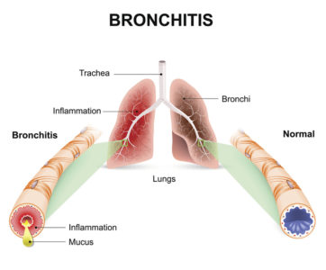 Illustration of What Is Type 2 Bronchitis, And How Is The Treatment / Treatment?