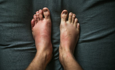 Illustration of Appendicitis Appear On The Toes After Eczema Treatment?