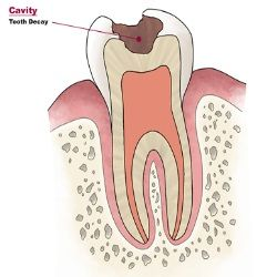 Illustration of How To Deal With Cavities?