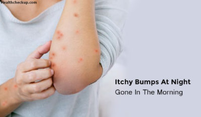 Illustration of Bumps And Itching In The Body In The Morning?