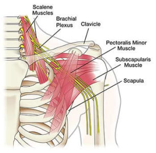 Illustration of Pain In The Shoulder To The Arm?
