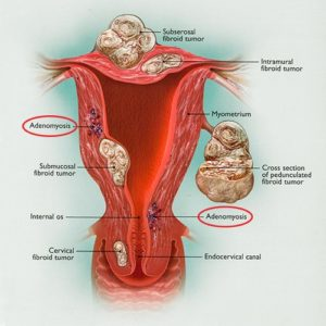 Illustration of Difference Between Uterine Myoma And Adenomyosis?