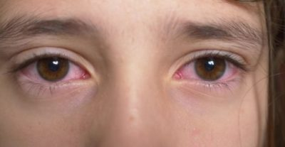 Illustration of Fever And Red-eye Post-swimming In Children Aged 2 Years?
