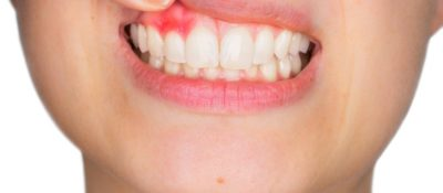 Illustration of Cavities And Swollen Gums Festering Whether Dangerous?