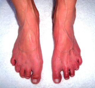 Illustration of Causes Redness Of The Feet?