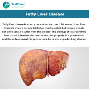 Illustration of Treatment For Sufferers Of Liver Symptoms?