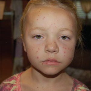 Illustration of Fever With A Rash On The Face?