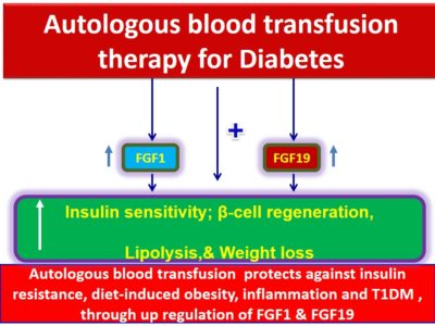 Illustration of Reasons For Blood Transfusion In Diabetics?