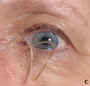 Illustration of Treatment For Stints In The Eyes?