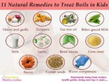 How To Treat Boils Naturally?
