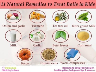 Illustration of How To Treat Boils Naturally?