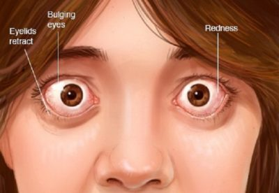 Illustration of Headache When Moving Eyes?