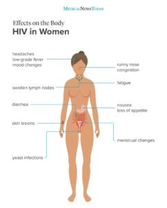 Illustration of Symptoms Of HIV Infection?