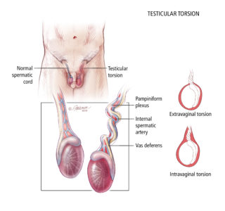 Illustration of Causes Of Pain Around The Left Testis?