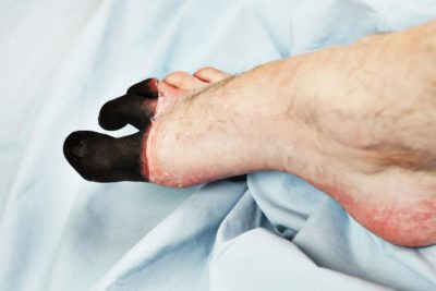 Illustration of The Pinkie Of The Feet Is Dark Gray?