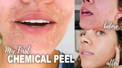 Illustration of When Does Peeling Occur After Chemical Peeling?
