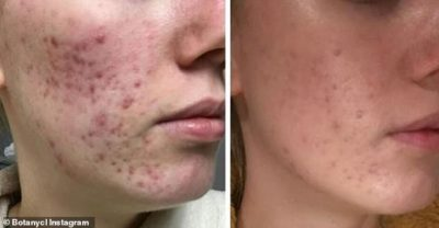 Illustration of Hormonal Acne When Cl?