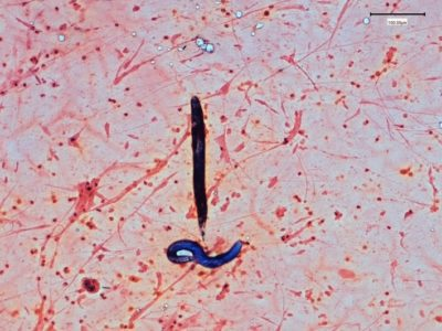 Illustration of Why Are There Worms In Sputum?