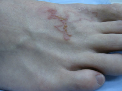 Illustration of Handling Of Worms In The Skin And Feels Itchy Rather Hot?