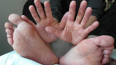 Illustration of Red And Bumps On The Hands And Feet?