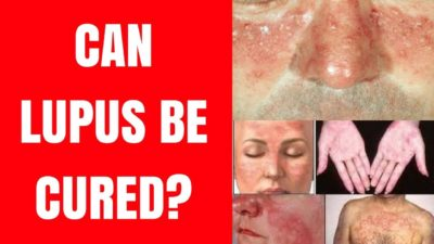 Illustration of Can Lupus Be Cured?