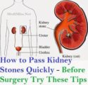 A Healthy Way Of Fasting For Sufferers Of Bladder Stones?