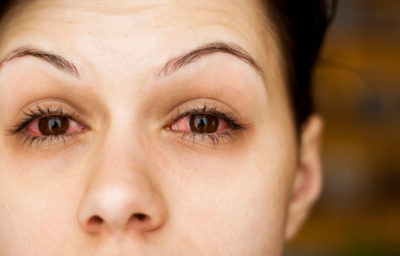 Illustration of Causes And Overcoming The Flu Until The Eyes Are Swollen?