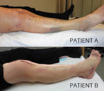 Illustration of Bruising On The Legs After Surgery On The Knee?