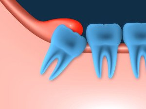Illustration of Tooth Growth At The Age Of 15 Years?