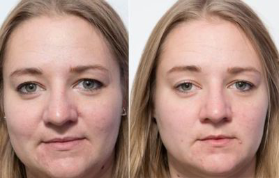 Illustration of Effects Of Sleep For The Skin?