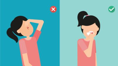 Illustration of How To Deal With Nosebleeds That Never Stops?