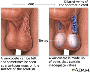 Illustration of The Veins On The Left Testicles Are Clearly Visible?