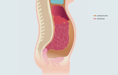 Illustration of Right Abdominal Pain And Heartburn After Ascitic Fluid Suction?