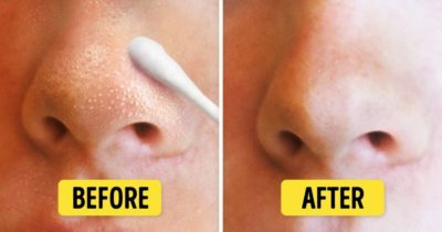 Illustration of Solution To Remove Blackheads On The Face?