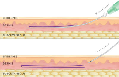 Illustration of Surgical Thread On The Surface Of The Skin Has Not Been Completely Pulled?