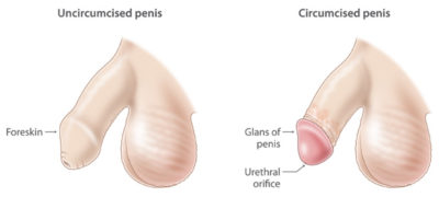 Illustration of Will The Foreskin That Is Not Circumcised Open By Itself?