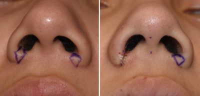 Illustration of Handling Of The Inner Nasal Skin On The Edge Of The Wound?