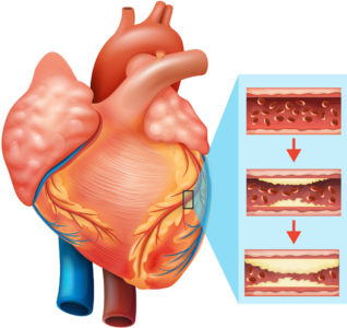 Illustration of Treatment For Heart Disorders?