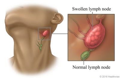 Illustration of Swelling Of The Lymph Nodes?