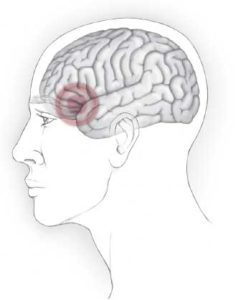 Illustration of The One-sided Headache That Doesn't Heal?
