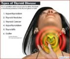 Prevention And Treatment Of Thyroid Disease?
