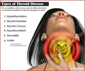 Illustration of Prevention And Treatment Of Thyroid Disease?