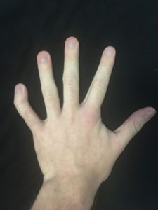 Illustration of Wavy And Uneven Fingers?