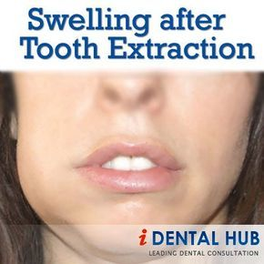Illustration of Swelling After Tooth Extraction?