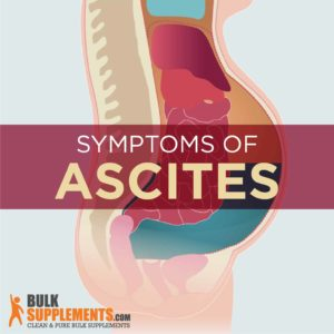 Illustration of Medication To Stop Ascites?