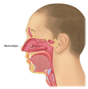 Illustration of Nasal Mucus That Enters The Oral Cavity And Coughs At Night?