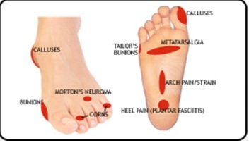 Illustration of Pain In The Soles Of The Feet?
