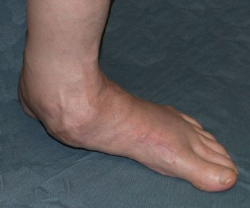 Illustration of How To Deal With Flat Feet?