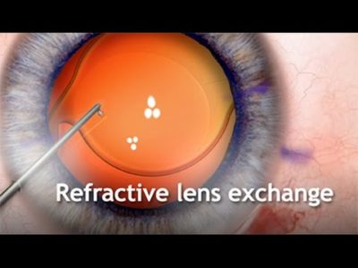 Illustration of The Procedure For Replacing The Eye Lenses With Synthetic Lenses?
